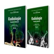 Sorin Marian Dudea - Radiologie, Imagistica medicala. Indrumator de studiu pentru pregatirea in specialitate. Volumele I si II