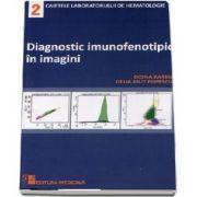 Diagnosticul imunofenotipic in imagini (Caietele laboratorului de hematologie - nr. 2)