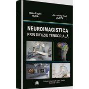 Neuroimagistica prin difuzie tensioriala