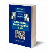 Tehnica cimentarii in artroplastia totala de sold