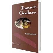 Tumori oculare - Marieta Dumitrache