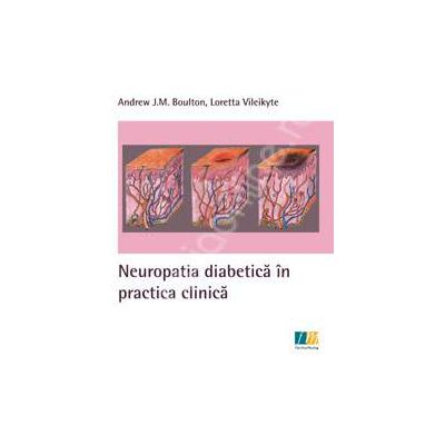 Neuropatia diabetica in practica clinica