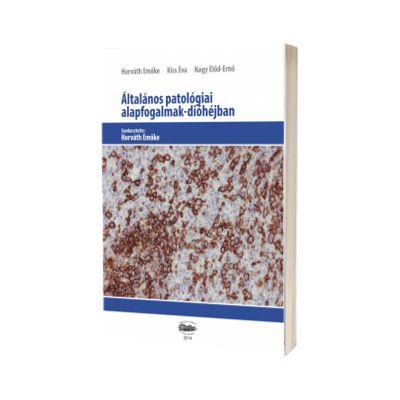 Altalanos patologiai alapfogalmak-diohejban, Emoke Horvath